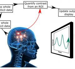 Neurofeedback Shows Promise in Treating Tinnitus