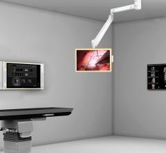 barco brainlab nexxis buzz flat panel displays hybrid or