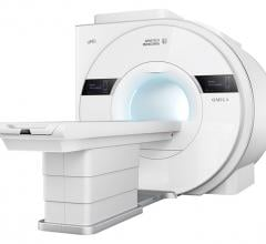 United Imaging's uMR OMEGA is designed to provide greater access to magnetic resonance imaging (MRI) with the world's first ultra-wide 75-cm bore 3T MRI.