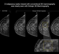Viztek, Exa Mammo Viewer, SIIM 2015, DBT, digital breast tomosynthesis