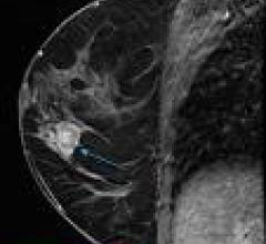 MRI Technique Means Fewer Breast Biopsies in High-Risk Women