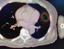 An example of motion tracking for a lung cancer tumor radiotherapy using the new Synchrony for Radixact, motion tracking and correction technology.#ASTRO19 #ASTRO2019 #ASTRO