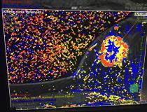 Five new advanced visualization apps were released this week at HIMSS 2019 for Fujifilm's Synapse 3D radiology software. These are images from a new magnetic resonance imaging (MRI) breast analysis software. The colorful kinetic curve threshold view shows the wash in and wash out of gadolinium contrast to define if a tumor is benign or a cancer.
