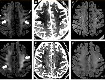 Figure 1 from the Radiology article. Brain MRI in two critically ill COVID-19 patients with persistently depressed mental status including a 56-year old man (A-C), and a 64-year old man (D-F). Axial diffusion-weighted (A, D), apparent diffusion coefficient (B, E) and FLAIR (C, F) images at the level of centrum semiovale in both patients demonstrate symmetric diffuse T2/FLAIR hyperintensity (arrowheads) and mild restricted diffusion (thick arrows) involving the deep and subcortical white matter with relative