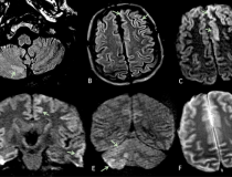 COVID-19 has been found to cause clooting in some patients, causing strokes and pulmonary embiolism. This series of images show brain MRIs in two critically ill COVID-19 patients with persistently depressed mental status including a 56-year old man (A-C), and a 64-year old man (D-F). Axial diffusion-weighted (A, D), apparent diffusion coefficient (B, E), and FLAIR (C, F) images at the level of centrum semiovale in both patients demonstrate symmetric diffuse T2/FLAIR hyperintensity (arrowheads) and mild rest