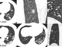 Chest CT images in a 34-year-old man with fever for 4 days. Positive result of reverse-transcription polymerase chain reaction assay for severe acute respiratory syndrome coronavirus 2 using a swab sample was obtained on February 8, 2020. Dates of examination are shown on images. A, Chest CT scan with magnification of lesions in coronal and sagittal planes shows a nodule with reversed halo sign in left lower lobe (box) at the early stage of the pneumonia. B, Chest CT scans in different axial planes