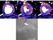 MRI scan of heart damaged by COVID, which can cause myocarditis, infarction and/or ischemia. Blue means reduced blood flow, orange is good blood flow. In this figure the inferior part of the heart shows dark blue, so the myocardial blood flow is very reduced. The angiogram shows the coronary artery which supplies the blood to this part of the heart is occluded. The three colored MRI images show different slices of the heart — the basal mid and apical slices. Read more. Image from European Heart Journal
