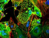 A study from Washington University School of Medicine in St. Louis provides evidence that the coronavirus can invade and replicate inside heart muscle cells, causing cell death and interfering with heart muscle contraction. The image of engineered heart tissue shows human heart muscle cells (red) infected with COVID-19 (SARS-CoV-2) (green). Read more. Image by Lina Greenberg.