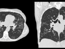 Example of a COVID-19 (SARS-CoV-2) positive patient's lung computed tomography (CT) scan. It shows the typical white, ground glass opacities (GGO) caused by COVID pneumonia. The pneumonia typically appears along the walls of each lobe of the lung, especially the chest wall and the lower portions of the lungs. This scan is from a Canon Aquilion Prime SP CT scanner and used Advanced intelligent Clear-IQ Engine (AiCE), an artificial intelligence-driven image reconstruction software to improve image quality of