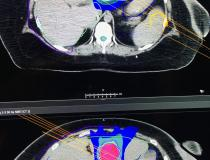 This is a comparison of a machine learning and human created treatment plans for pancreatic cancer radiation therapy displayed by Raysearch on the expo floor at the ASTRO 2019 meeting today.  The vendor received FDA approval for this machine learning technology and auto segmentation for both MRI and CT.#ASTRO19 #ASTRO2019 #ASTRO