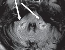 COVID-19-related disseminated leukoencephalopathy (CRDL) represents an important, although uncommon, differential consideration in patients with neurologic manifestations of coronavirus. Axial FLAIR MR image shows T2 prolongation in bilateral middle cerebellar peduncles (arrows). Findings were associated with restricted diffusion and areas of T1 hypointense signal without enhancement or abnormal susceptibility. Image courtesy of American Roentgen Ray Society (ARRS), American Journal of Roentgenology (AJR).