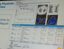An example of how prior images for a cancer patient can be called up and embedded into a radiology report using an artificial intelligence driven software from Carestream. Radiologist Cree Gaskin, M.D., University of Virginia, explained in sessions how new enterpise imaging software allows key images and links to prior exams to be embedded into radiology reports.