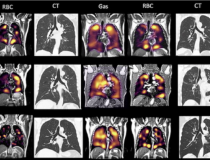 There is a mismatch in the gas imaging phase (showing concentrations of the xenon gas in the left gas images), and the gas uptake phase where there are numerous areas where there is gas present but it cannot be transferred to the blood due to micro-emboli (seen in the right RBC images). Image courtesy of RSNA.