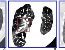 A, Initial conventional axial CT image shows no noticeable lung damage (within red box) in right upper lobe. B, Electron density spectral CT image obtained at same time as image in A shows lesions (within red box) in right upper lobe. C, Follow-up conventional axial chest CT image obtained 5 days after images in A and B confirm presence of lesions (within red box) in right upper lobe. Image courtesy of the American Roentgen Ray Society (ARRS), American Journal of Roentgenology (AJR)