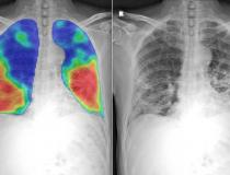 Numerous vendors have developed artificial intelligence (AI) algorithms to automatically detect and score the severity of COVID-19 pneumonia in the lungs from CT or DR imaging. This chest X-ray shows the CAD4COVID AI software developed by Thirona and Delft Imaging. It will generate a score between 0 and 100 indicating the extent of COVID-19 related abnormalities, display such lung abnormalities through a heatmap and quantify the percentage of the lung that is affected. The COVID areas of the lung appear as