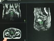 This is an example of the real-time MRI imaging of radiation therapy beam delivery on a liver tumor demonstrated with the Elekta Unity MRI-guided RT system at ASTRO 2019. It shows how real-time imaging can show organ/tumor motion due to respiration. Currently the radiation therapist can turn the beam off if the tumor moves out of tolerance, but the company is working toward automated beam off/on features to account for motion.