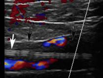 Deep vein thrombosis (DVT) associated with a peripherally inserted central catheter (PICC) line in a 54-year-old man with COVID-19. Sagittal color Doppler ultrasound image shows an echogenic thrombus (black arrows) in the right subclavian vein, associated with the PICC line (white arrow). Image courtesy of Margarita Revzin et al.  Clot caused by COVID