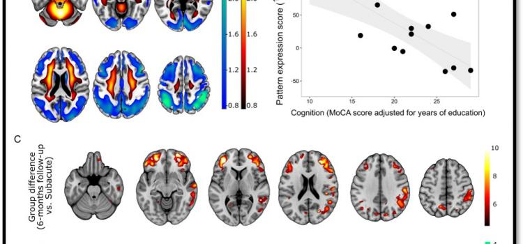 SNMMI's Image of the Year is a detailed depiction of areas of cognitive impairment, neurological symptoms and comparison of impairment over a six-month time frame