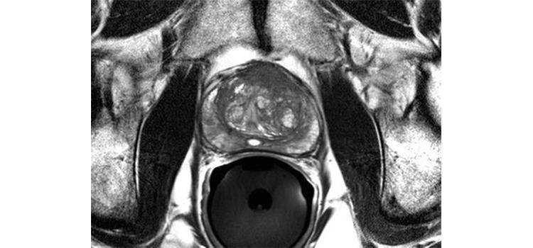 Brachytherapy Systems Imaging Technology News