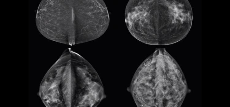Join. Breast mri screening guidelines share